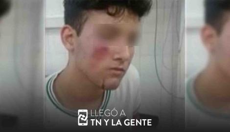 Otro caso de violencia escolar: le pegaron con una manopla y le fisuraron el maxilar